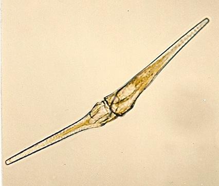 4 Ceratium fusus